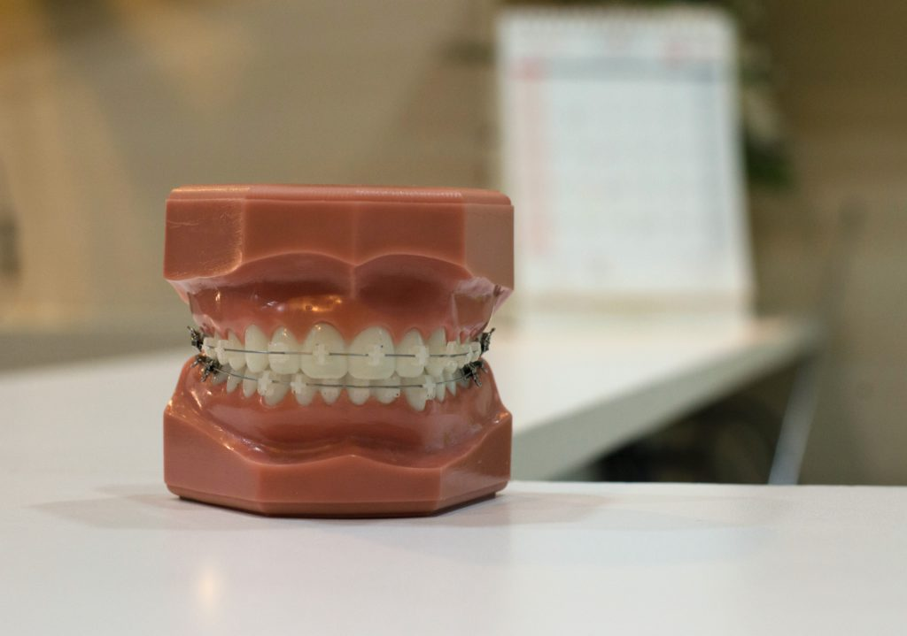 A denture with braces on top of a table